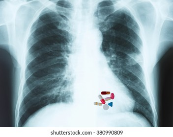 Mixed medicine on chest x-ray image.Medical concept.
