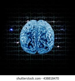 model brain on background EEG