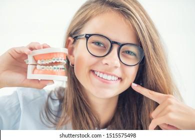 Modell einer Zahnspange in der Hand eines jungen Mädchens mit gleichmäßigen Zähnen nach dem Prozess der Verwendung einer Zahnspange.