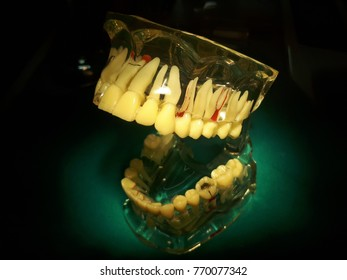 Model dental represents the appearance of each tooth.