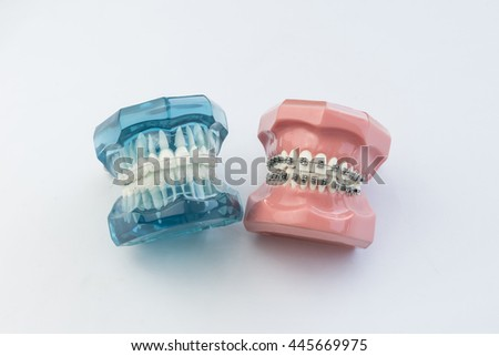 Pleasing Model Human Jaw Wire Braces Attacheg Stock Photo Edit Now Wiring Digital Resources Cettecompassionincorg