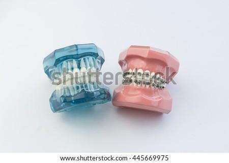 Astonishing Model Human Jaw Wire Braces Attacheg Stock Photo Edit Now Wiring 101 Orsalhahutechinfo