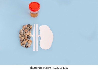 a model of a human kidney made of paper and stones, a jar with urine tests on a blue background. the concept of preventive periodic medical examination