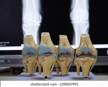 model of knee joint showing multiple stages of knee osteoarthritis and total knee replacement or arthroplasty. radiograph of knee joint on the background.