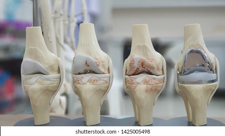 Model of knee joint showing multiple stages of knee osteoarthritis(OA knee) and total knee replacement(TKR). Blurred skeletal model and examination room background.