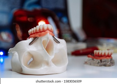 The model of the skull for maxillofacial surgery and dentistry lies on a table with plates screwed into it.
