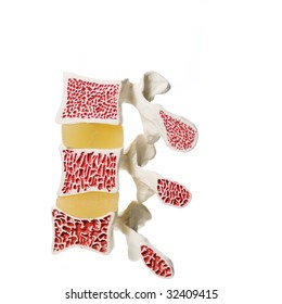Model of what osteoporosis does with the affected bones. Top is good, middle is showing loss of bone density, bottom is severe loss of bone density. Shrinking is definite.