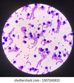 Moderate white blood cells in specimen Synovail fluid.Gout pateint.