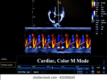 Modern echocardiography (ultrasound) machine monitor. Colour image. New hospitl equipment. Cardiac, Colour M Mode.