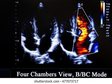 Modern echocardiography (ultrasound) machine monitor. Colour image. New hospitl equipment for a better diagnostics. Four Chambers View, B/BC Mode