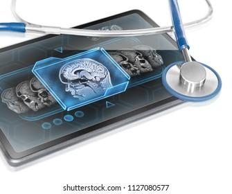 Modern medical tablet displaying scan human brain