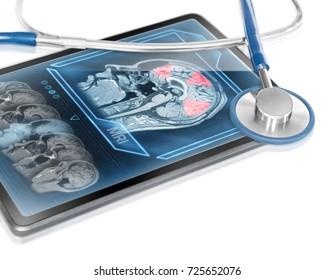 Modern medical tablet displaying scan of cerebral activity