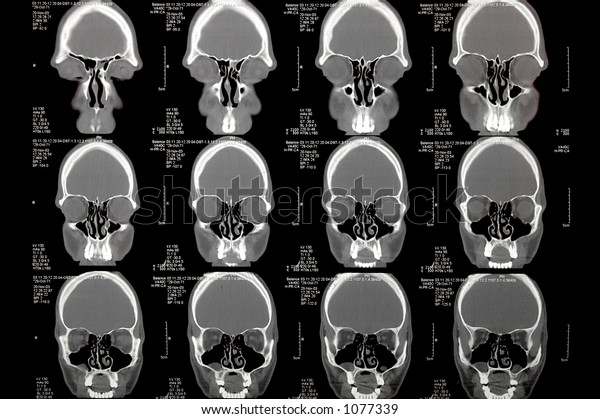 modern radiology, brain in CT