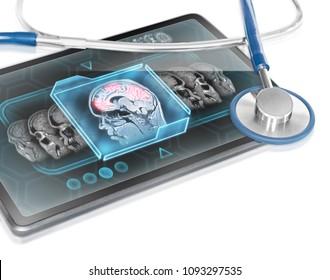Modern tablet displaying brain activity scan