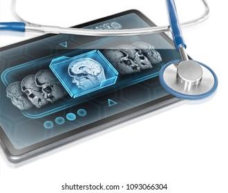 Modern tablet displaying brain scan