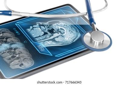 Modern tablet displaying cerebral scan