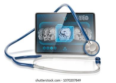 Modern tablet displaying MRI brain scan