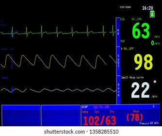 Modern vital sign monitor on patient background at ward in the hospital