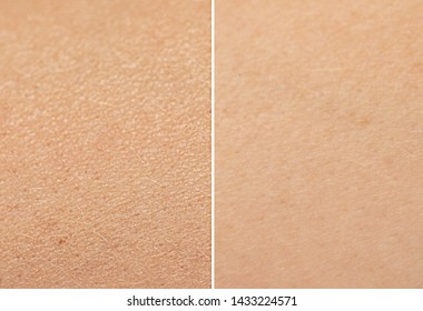Moisturized and un-moisturized skin is compared side by side to see the results of good skincare.