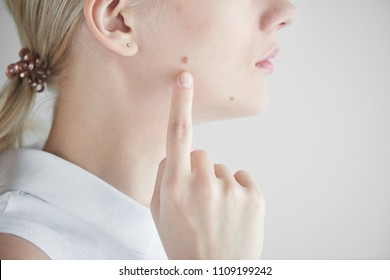 The mole on the girl's face closeup