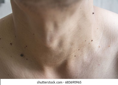 Mole on men's skin