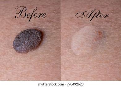 Mole removal inborn