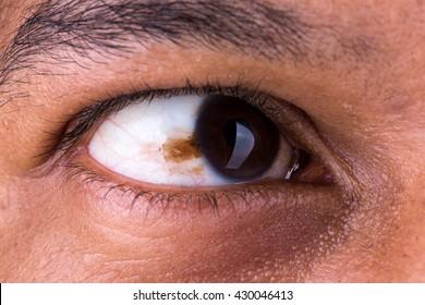 Mole skin in eye