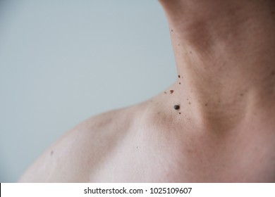 Mole or wart on the men skin