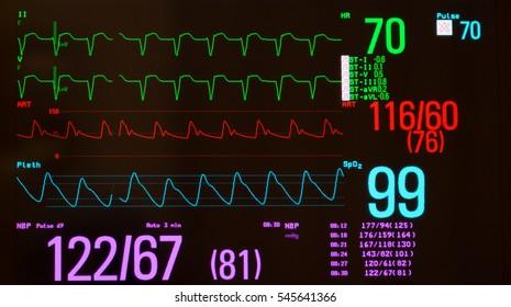A Line Arterial Monitoring : Monitor showing supraventricular tachycardia green arterial stock