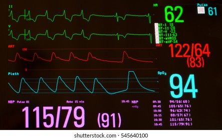 Monitor with EKG with paced rhythm then sinus bradycardia  (green lines), arterial blood pressure (red line), oxygen saturation (blue line) and noninvasive blood pressure against a black background.