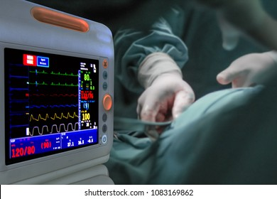 Monitor heart rate for surgery as equipment tools for surgeons who need to operate a patient in an operating room for a surgery