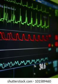 monitor in the ICU. The waves of blood pressure, blood oxygen saturation, ECG