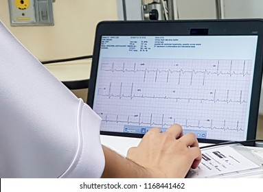 Monitoring of ECG of the patient in ICU,ICU monitor with several patients and team doctor and nurse background,Woman reading electrocardiogram in the hospital,Analyzing ECG electrocardiogram,