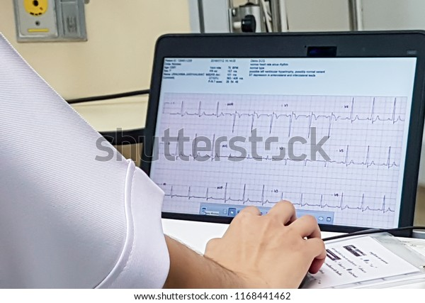 Monitoring Ecg Patient Icuicu Monitor Several Stock Photo (Edit Now