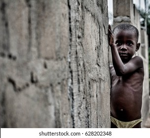 Monkey Village, LAGOS, NIGERIA. April, 2017: Street portrait of a young Nigerian boy suffering from malnutrition. Location: a rural area/village in Lagos, Nigeria called Monkey Village