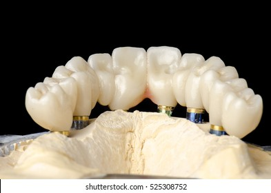 Monolithic zirconia restorations full arch implant supported with the ceramic load in vestibular, back background.