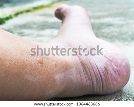 Mosquito Bite Skin Rash Swelling Red Stock Photo Edit Now