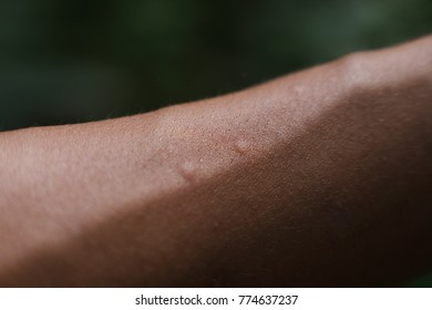 Mosquito bites on a human