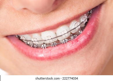 Mouth with braces and beautiful teeth