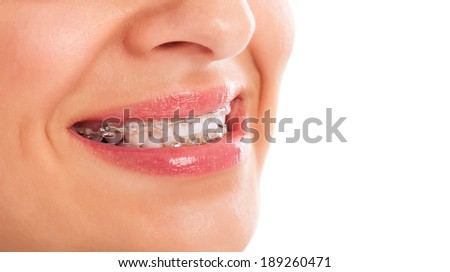 Mouth Braces Teeth Whitening Stock Photo Edit Now 189260471