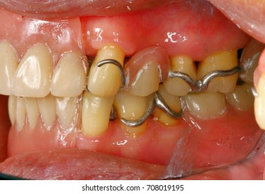 Mouth cavity with partial metal base denture