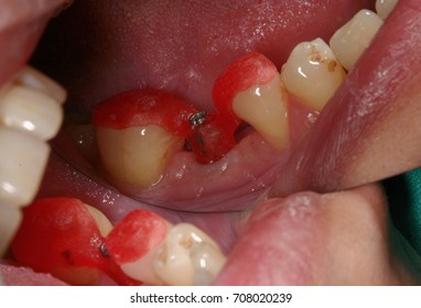 Mouth cavity with tooth implants