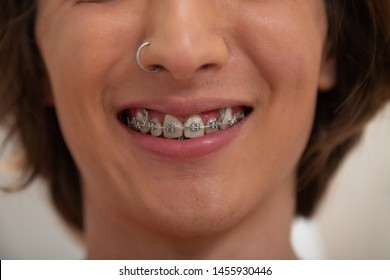 Mouth with dental braces. Closeup of a smiling Caucasian young male patients face with dental braces and a nose piercing