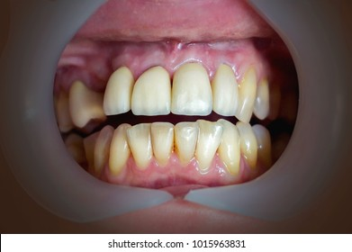 Mouth with four prosthetic upper teeth. Close up.
