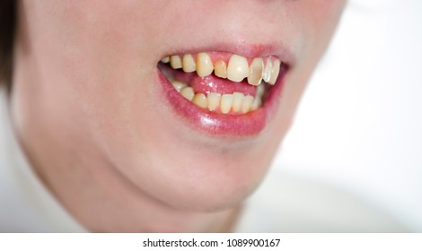 mouth of a man with crooked yellow teeth close-up. Dental problem