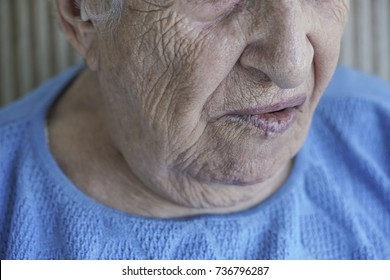 mouth of a senior person who has facial palsy
