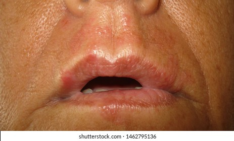 The mouth of a woman with herpes