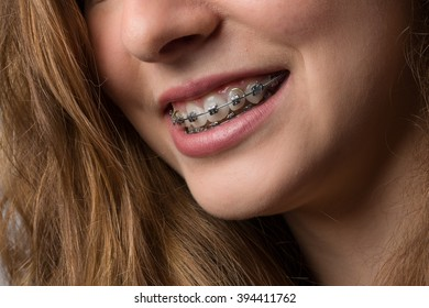 mouth of a young woman with a dental brace