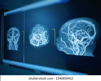 MRA AND MRV OF BRAIN  Finding:Bilateral territorial muscles to the cortex and subcortical of the parietal and low hemispheres cerebellar.