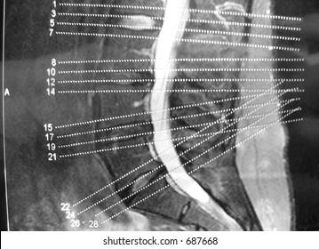 MRI back herniated disc herniation medical